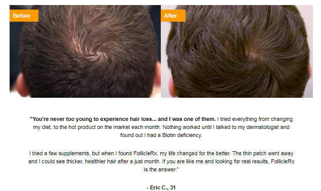 follicle rx results